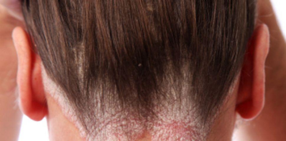 Сапун за псориазис: Всичко, което трябва да знаете - Псориазис -